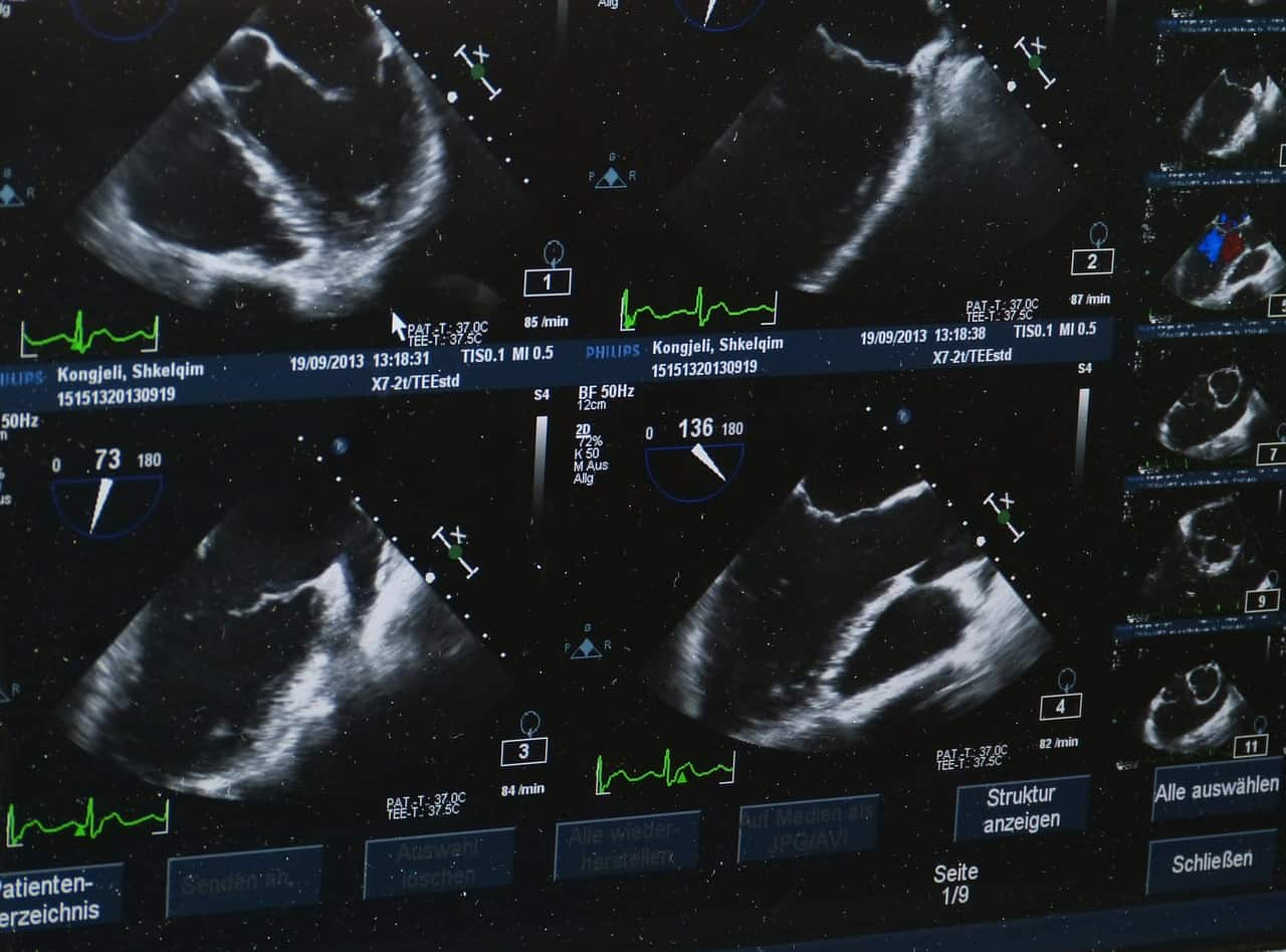 monitor close up ultrasound